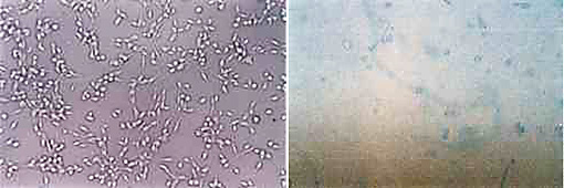 Microscopy image of fibrosarcoma cells in culture left untreated vs. treated with medicinal mushroom extract by Myko San