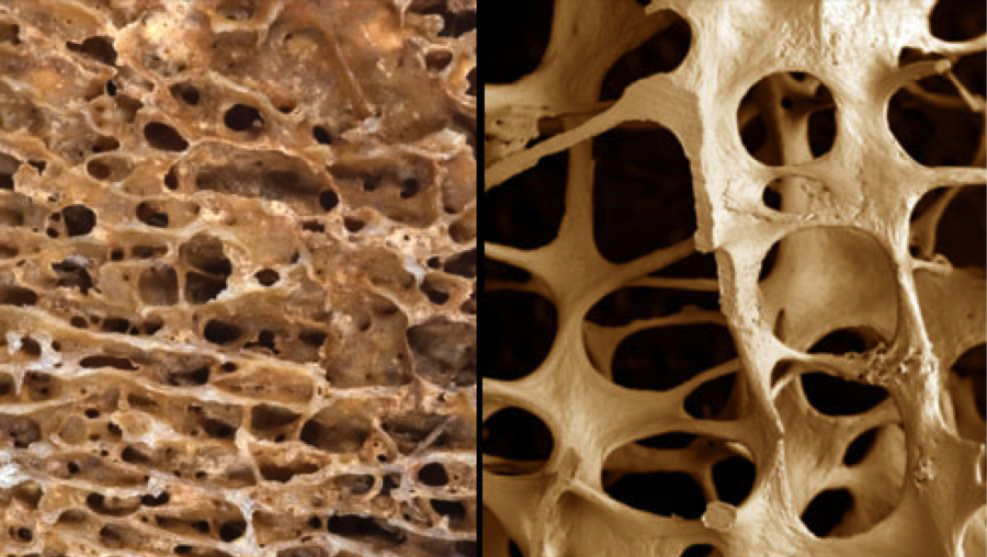 Osteoporosis damages the bone so it becomes less dense, weak and brittle