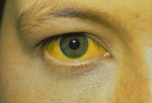 Jaundice is the yellowing of the skin and the eyes